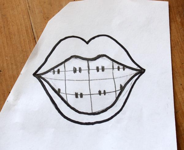 Orthodontist Cookie Template